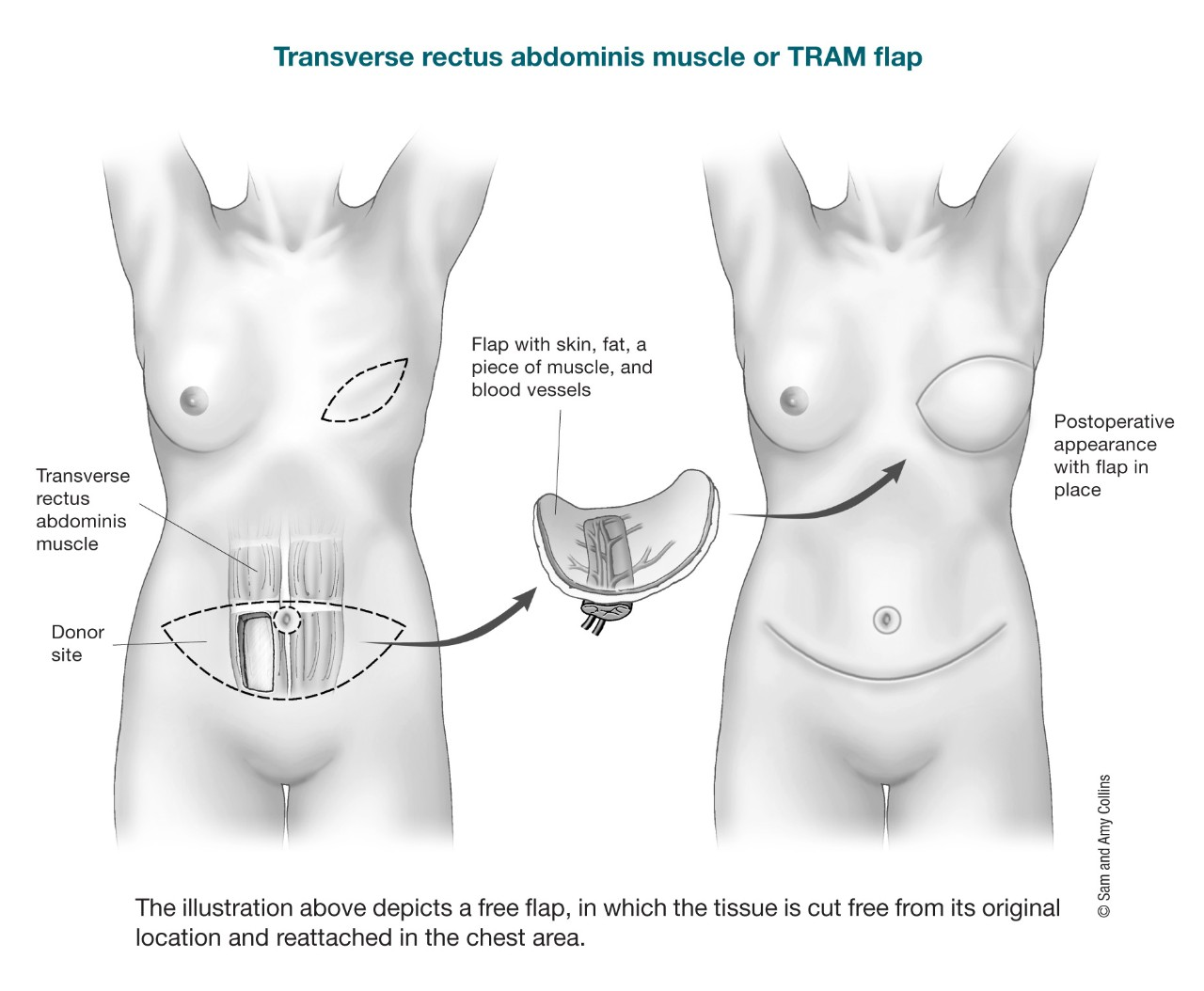 illustration depicting a free flap in which the tissue is cut free from its original location and reattached in the chest area