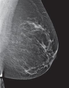 mammogram image showing a breast that has scattered areas of dense glandular and fibrous tissue