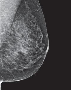 mammogram image showing a breast where more of the breast is made of dense glandular and fibrous tissue