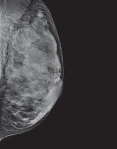 mammogram image showing a breast that is extremely dense, which makes it hard to see tumors in the tissue