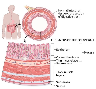 illustration showing a cross section of the digestive tract (normal intestinal tissue) and details of the layers of the colon wall (including the mucosa (epithelium, connective tissue, thin muscle layer), submucosa, thick muscle layers, subserosa and serosa)
