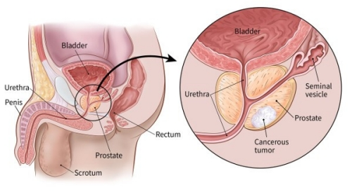color illustration showing the prostate and surrounding area (including the location of the urethra, penis, scrotum, rectum, bladder and seminal vesicle)