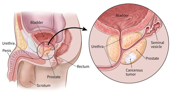 Prostate gland with cancerous tumor