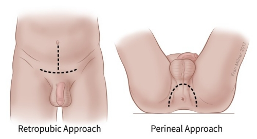illustration showing the retropubic approach and perineal approach