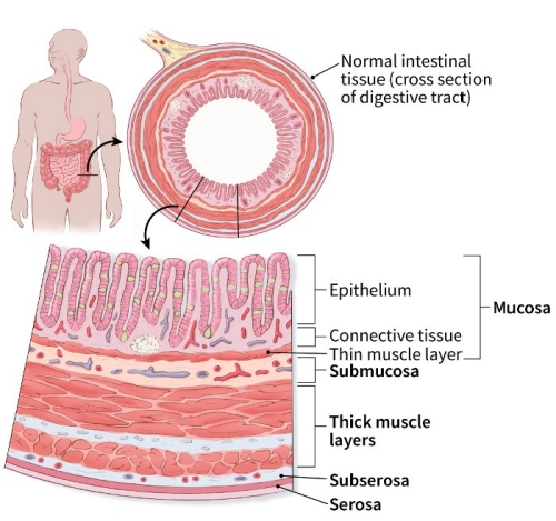 illustration showing normal intestinal tissue with a cross section of the digestive tract and detail showing mucosa (epithelium, connective tissue, thin muscle layer), submucosa, thick muscle layers, subserosa and serosa