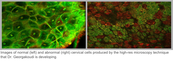normal and abnormal cervical cells