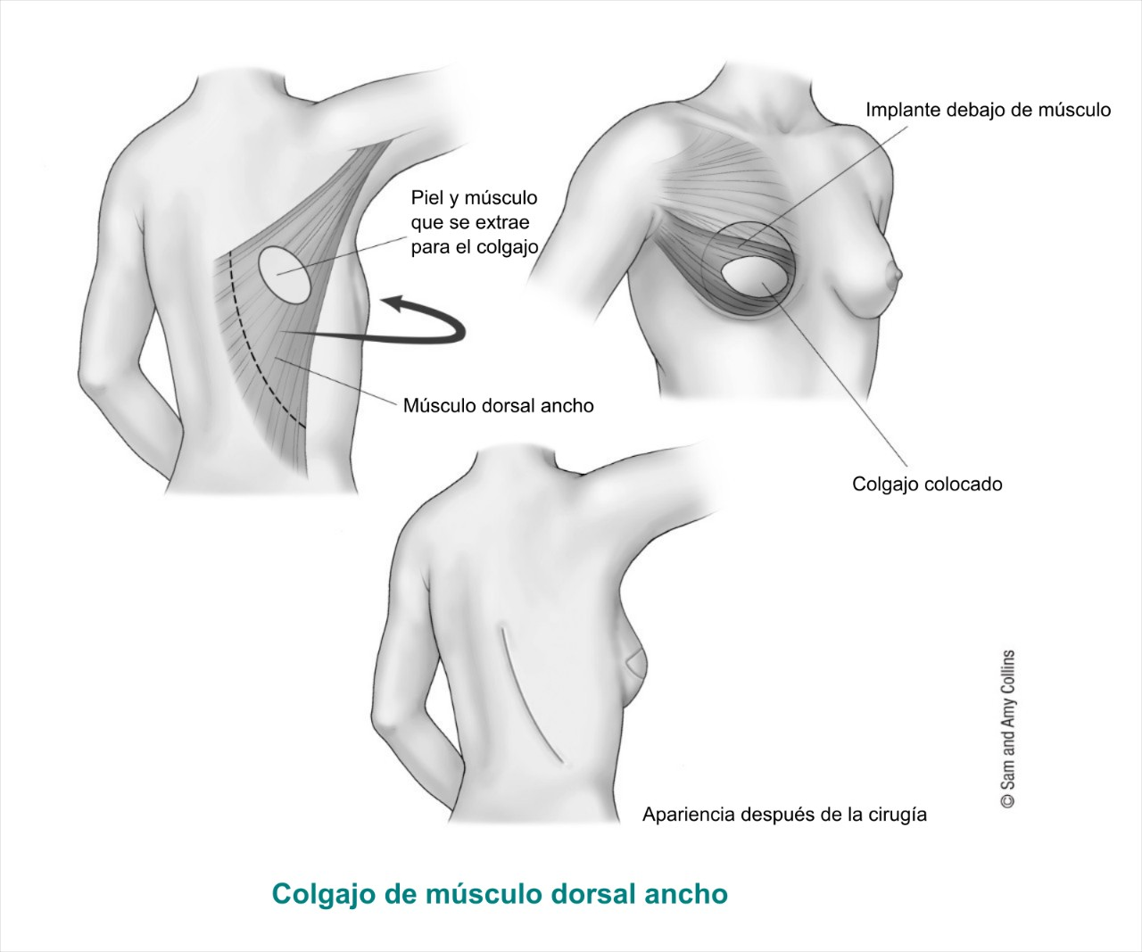 Latissimus dorsi muscle or LAT flap Spanish 2017