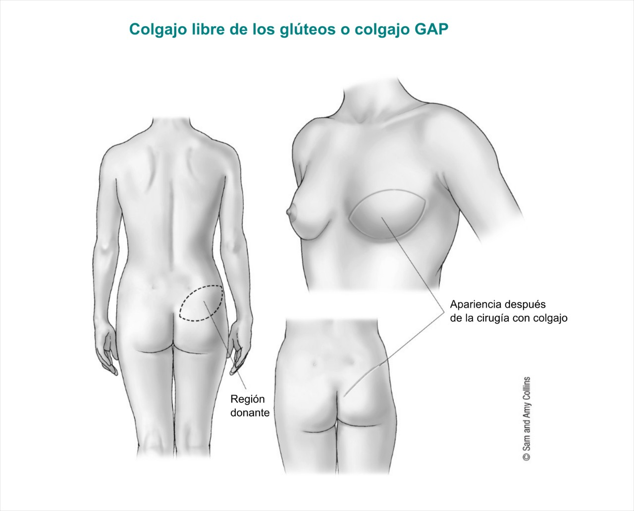 Gluteal free flap or GaP flap Spanish 2017