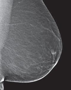 mammogram image showing a breast that is almost all fatty tissue