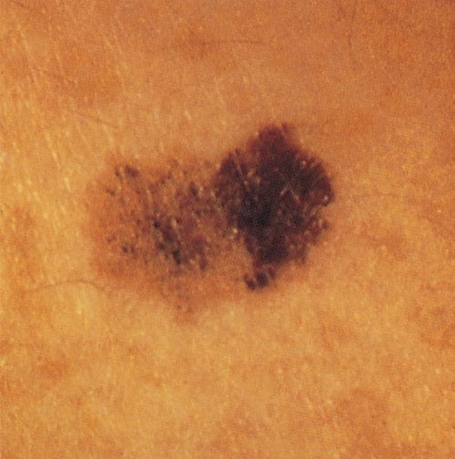 Photo of mole showing asymmetry, border irregularity, and color