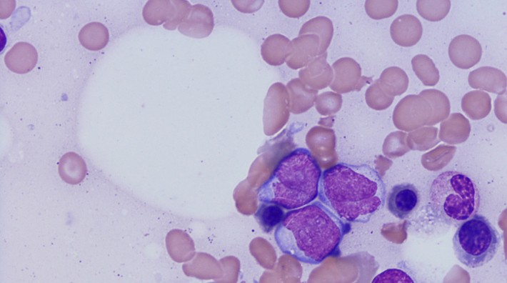 Micrograph of acute myeloid leukemia